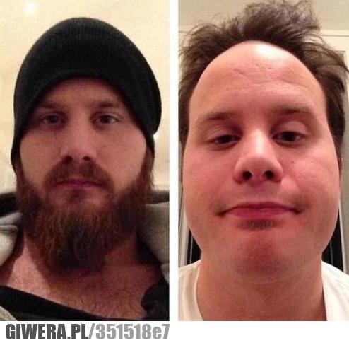 Czasem lepiej się nie golić