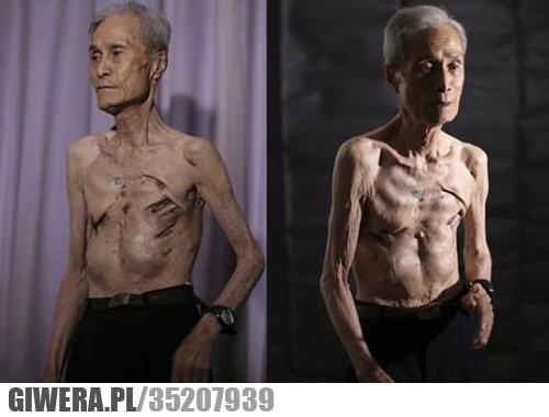 Ten mężczyzna przeżył wybuch bomby atomowej w Nagasaki
